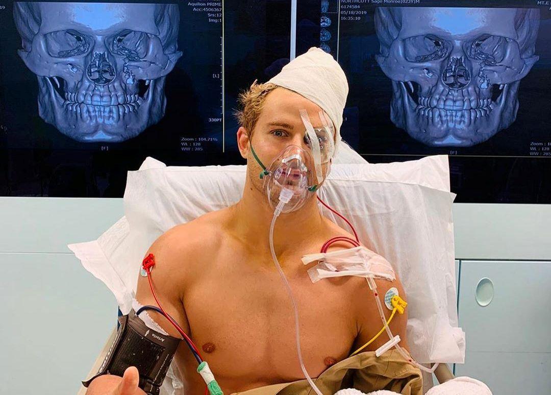 Бой длиною в 29 секунд: восемь переломов и череп как у столетней мумии фото