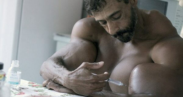 Бульбозавр из Бразилии: бывший наркоман делает себе инъекции масла
