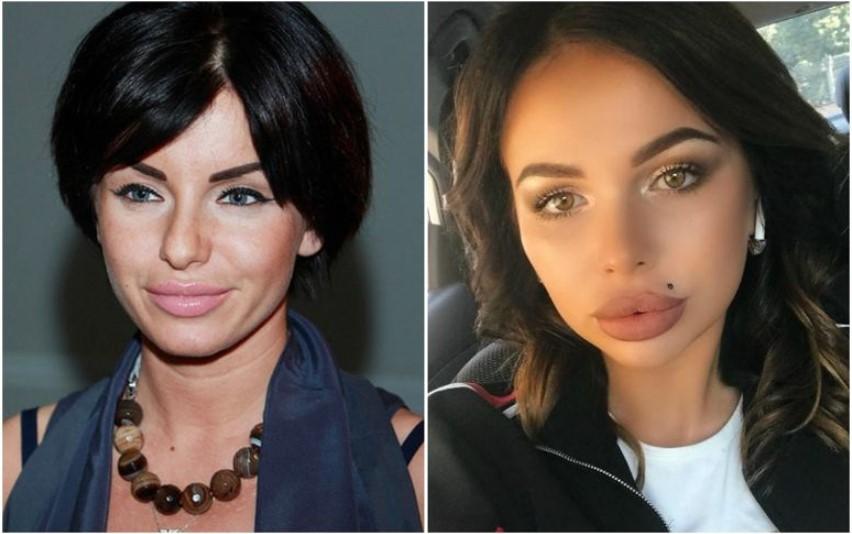 «Не губы, а вареники»: 8 российских звезд, которые переборщили с увеличением фото