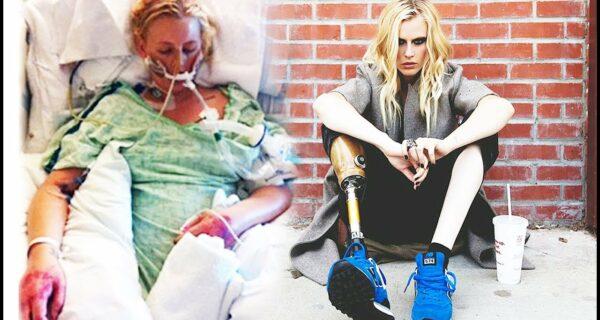 Трагическая история Лорен Вассер, которая лишилась ног после использования тампонов