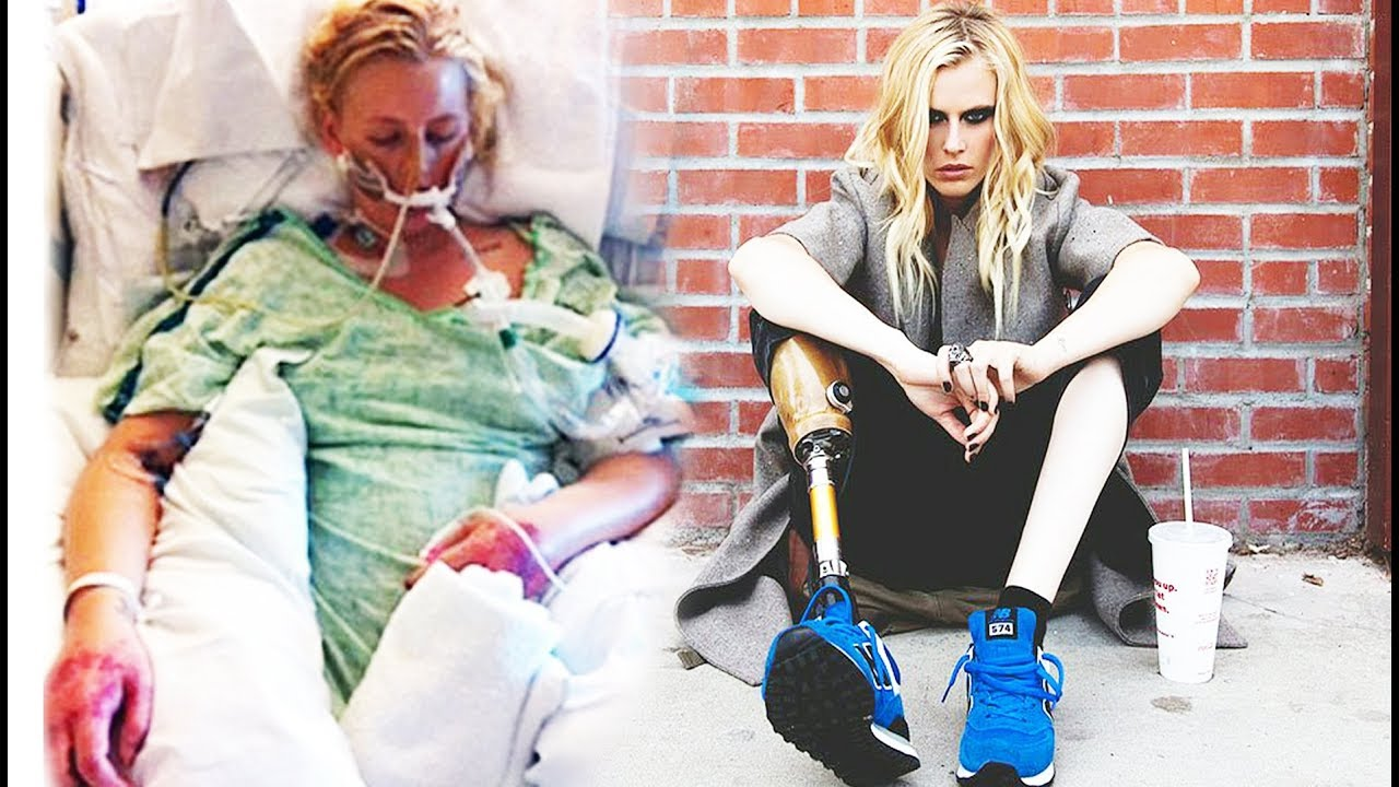 Трагическая история Лорен Вассер, которая лишилась ног после использования тампонов фото