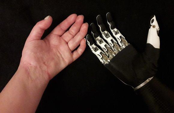 1154511.580xp - Девушка, которой муж отрубил руку из-за ревности, снялась в эротической фотосессии