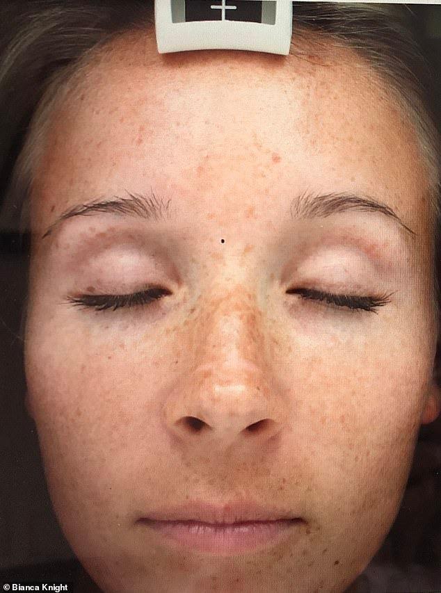 Как телефон и компьютер старят кожу: молодая женщина ужаснулась последствиям излучения на лице