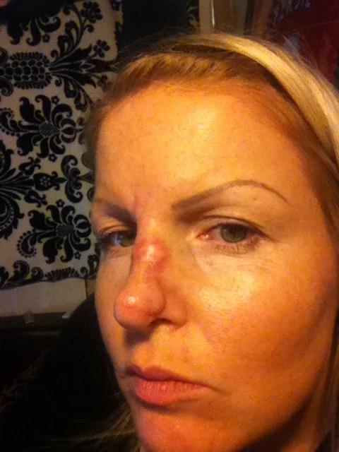 Солнечный гроб: эти женщины приобрели красивый загар и рак кожи после солярия