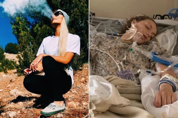 Аромат смерти: девушка из США тяжело заболела и впала в кому после использования вейпа