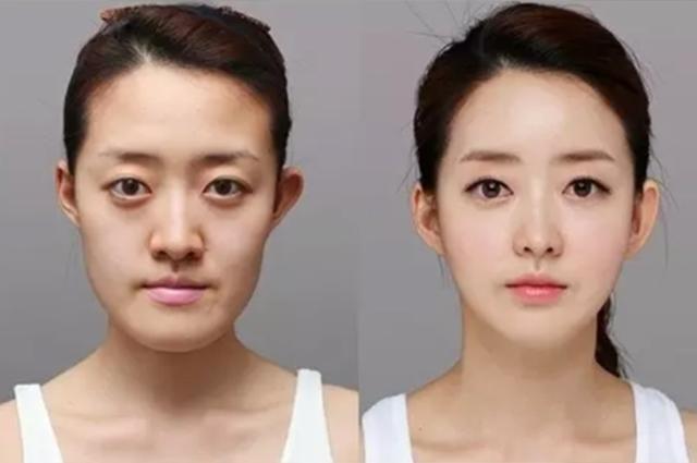 Пластические операции, которыми увлекаются кореянки. Фото