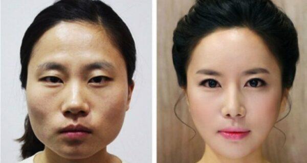 «Вишневые губы», уменьшение челюсти, пластика ноздрей: какие операции популярны в ЮжнойКорее