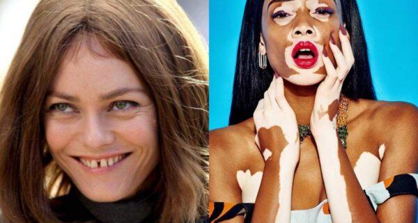 5 знаменитостей, которых мы любим, несмотря на дефекты их внешности