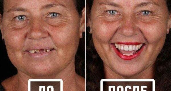Бразильский стоматолог помогает беднякам блистать белоснежной улыбкой