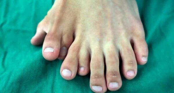 Счастья много не бывает: китаец долго жил с 14 пальцами на ногах, считая аномалию счастливым знаком