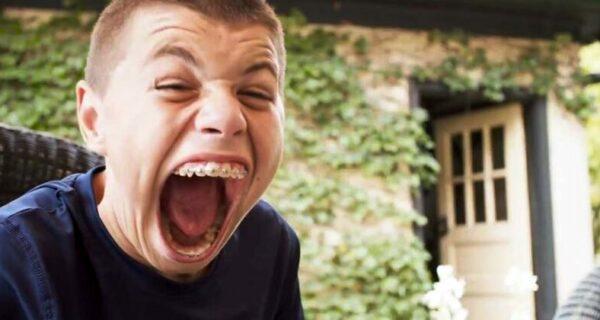 «Я чувствую себя необычным»: парень из Миннесоты помещает в рот апельсины имячи
