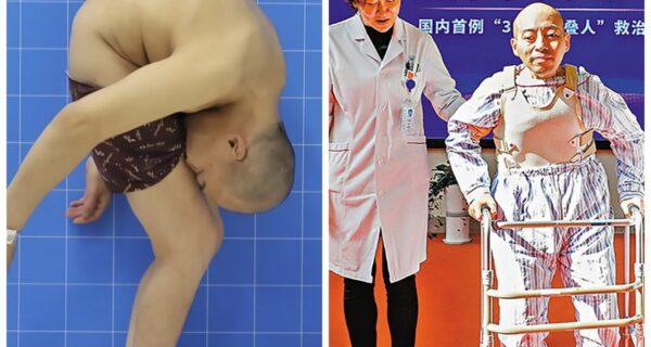 Мужчина прожил 28 лет сложенным пополам из-за редкого заболевания