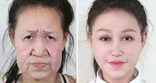 Из бабушки в девочку: 15-летней китаянке с лицом старушки сделали операцию
