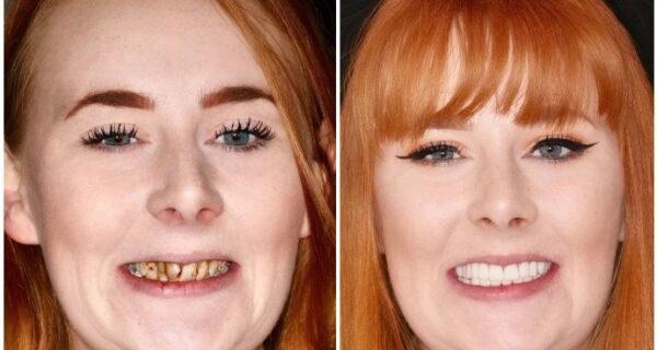 С улыбкой по жизни: Как преобразилась девушка с ужасными зубами