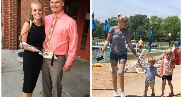 Невозможное возможно: женщина без рук и ног вышла замуж, родила двоих детей и построила успешную карьеру