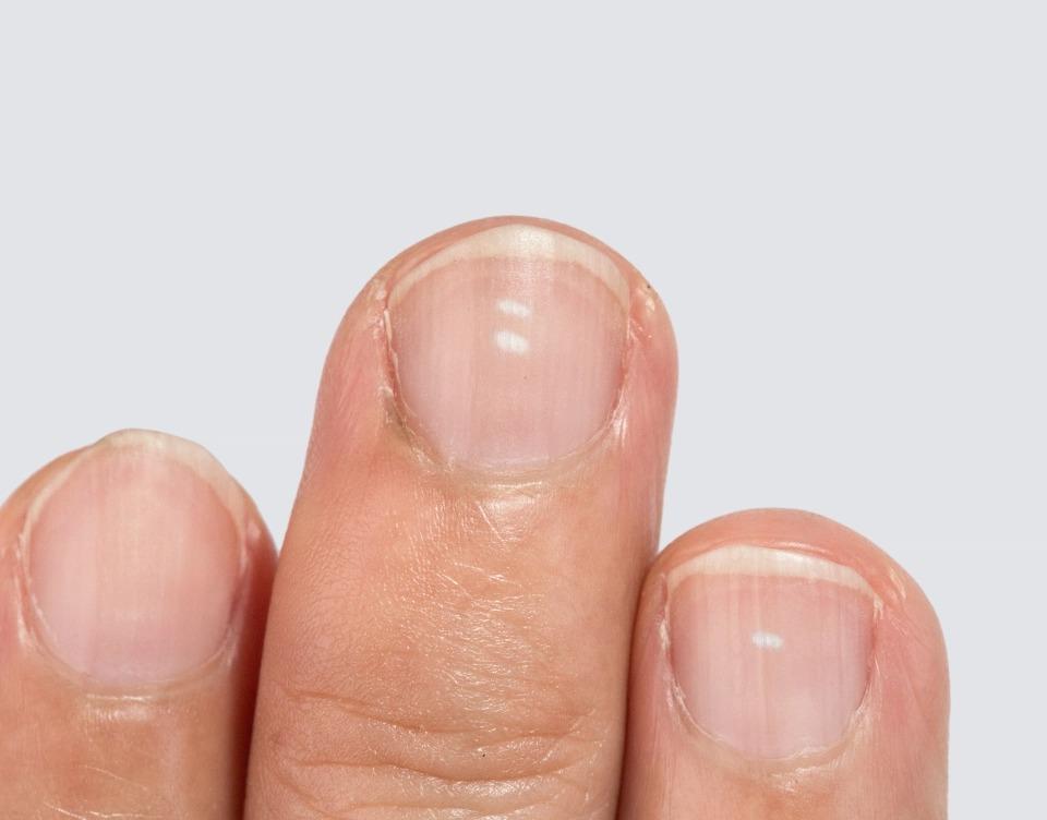 От артрита до меланомы: 10 признаков серьезных заболеваний, которые можно определить по ногтям