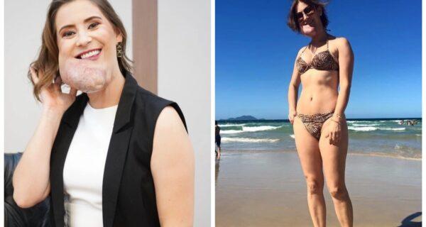 Красота, несмотря ни на что: бразильянка с редким заболеванием восхищает уверенностью всебе