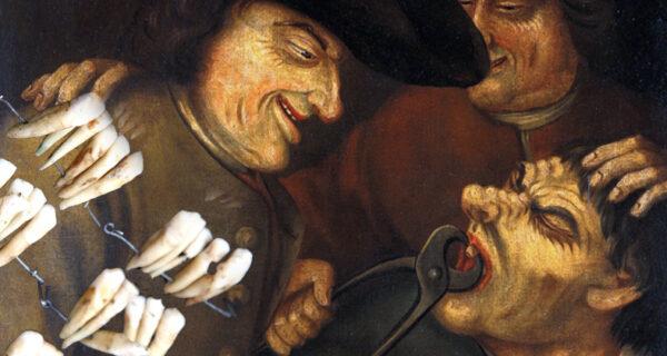 Что такое «зубы Ватерлоо», или Как битва 1815 года повлияла на развитие стоматологии