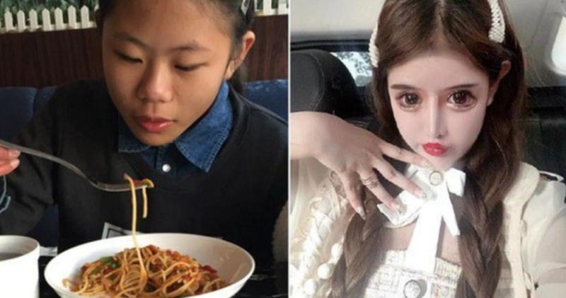 Китайская школьница сделала 100 пластических операций, чтобы достичь своего идеала фото
