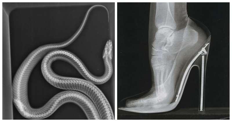 35 рентгеновских снимков, которые открывают мир с неожиданной стороны фото