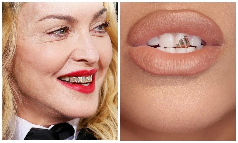 Бриллиантовые зубы: звезды хвастают грилзами из золота и драгоценных камней