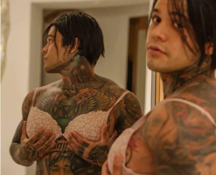 Колумбийский блогер проиграл спор и сделал себе силиконовую грудь