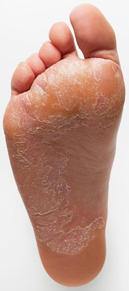 Как ступни отображают состояние здоровья: 8 сигналов о серьезных заболеваниях