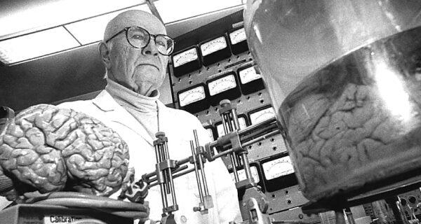 История одной пересадки головы, которой не суждено было состояться