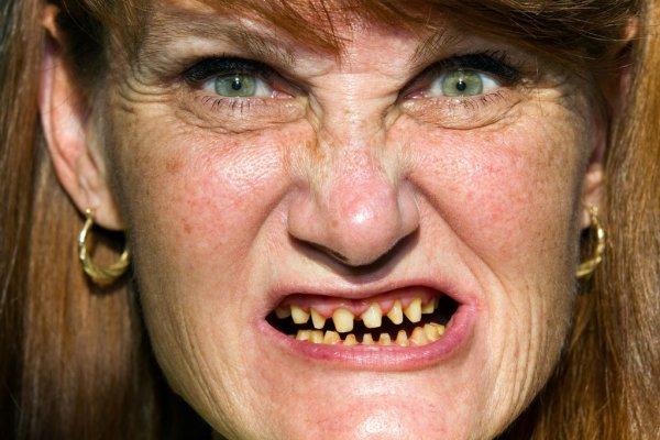 Bigpicture ru depositphotos 12860367 stock photo scary face bad teeth